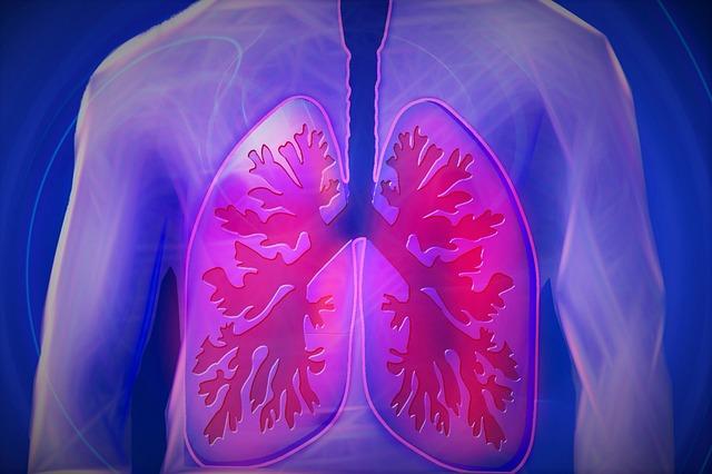 <COPD記録>病院で胸部CTの診断結果を聞いてきた結果とは?